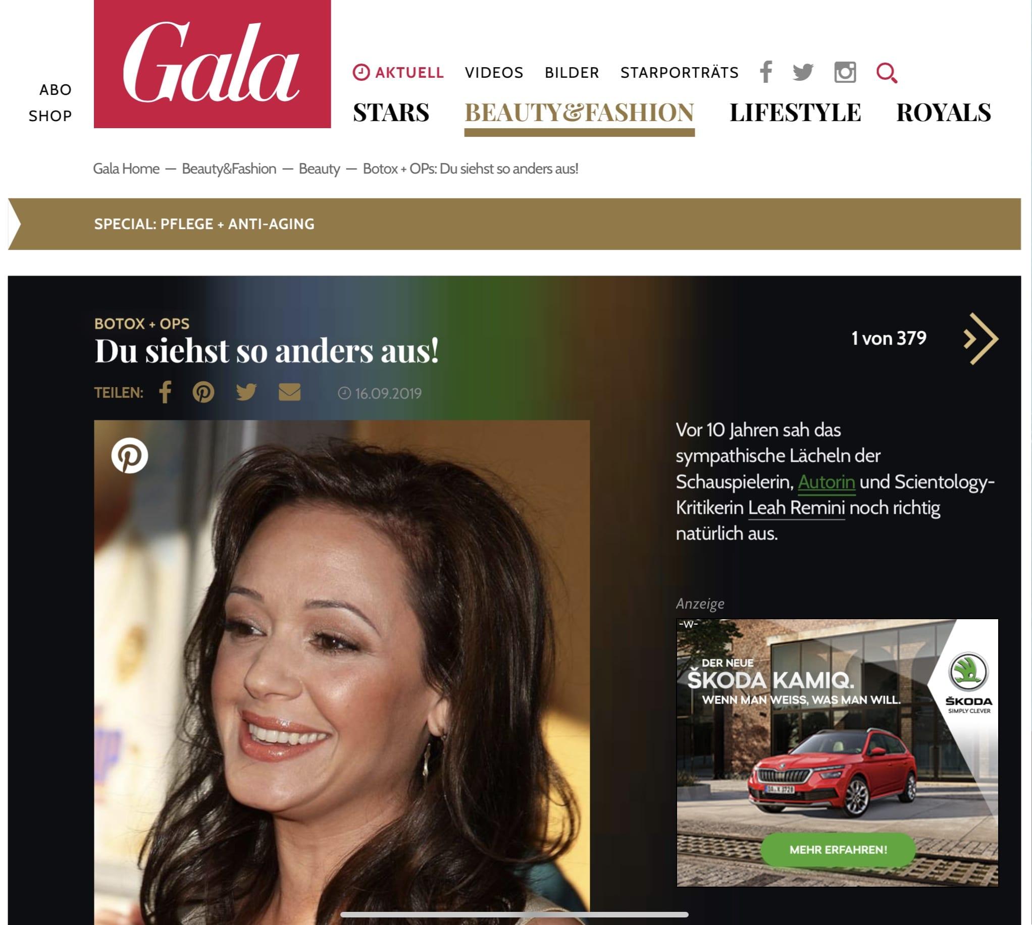 Gala.de Du siehst so anders aus
