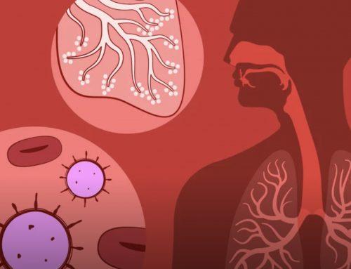 Corona Virus greift Organsysteme vielleicht altersbedingt unterschiedlich an
