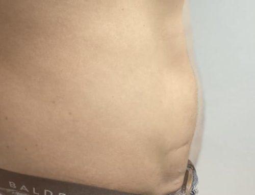 Kryo Sportler 4W -1cm -1,5kg