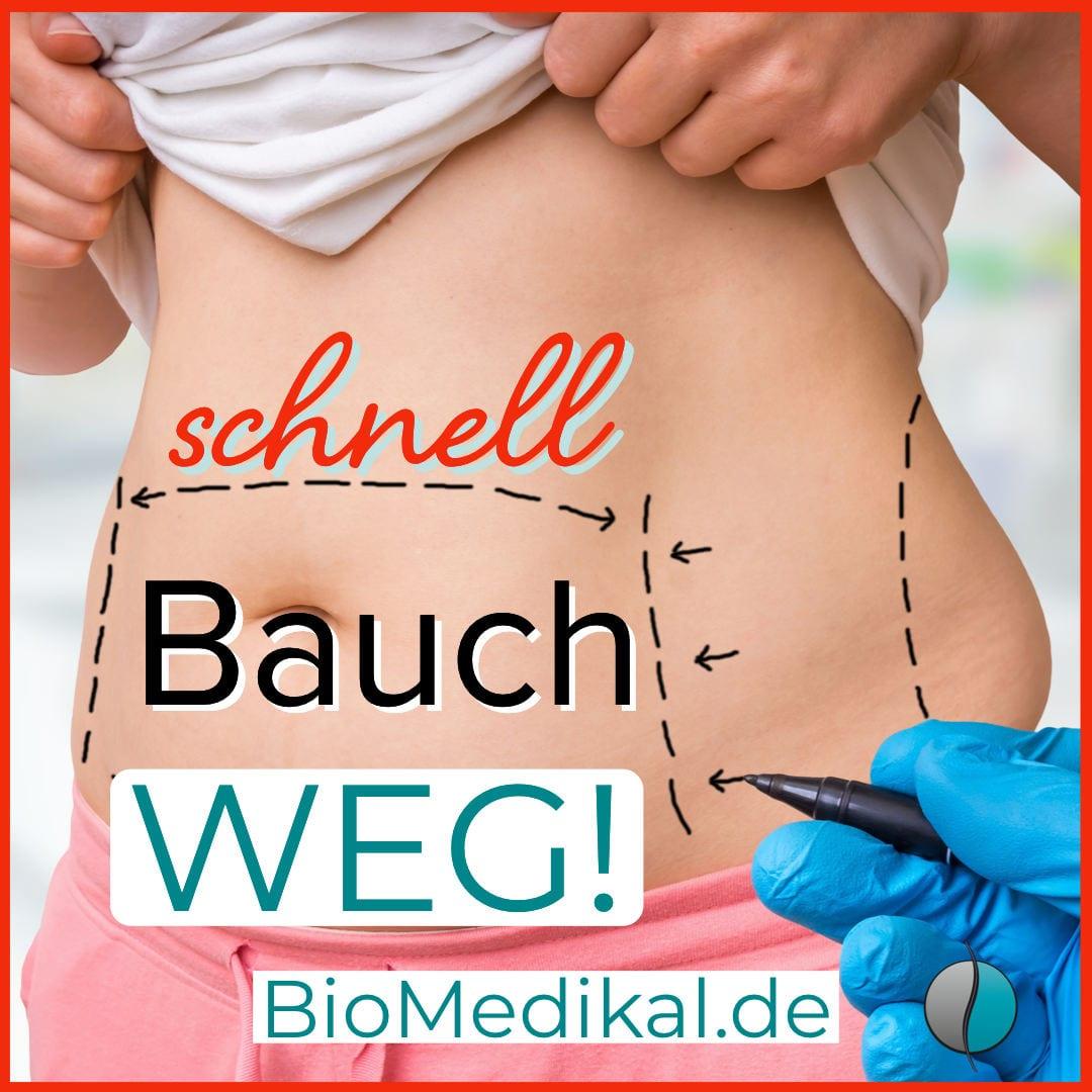 Schnell-Bauch-Weg-1080-200k.jpg